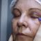 Bate-papo com Simone Rebouças e Sandra Moia – Cirurgias (Parte 2)